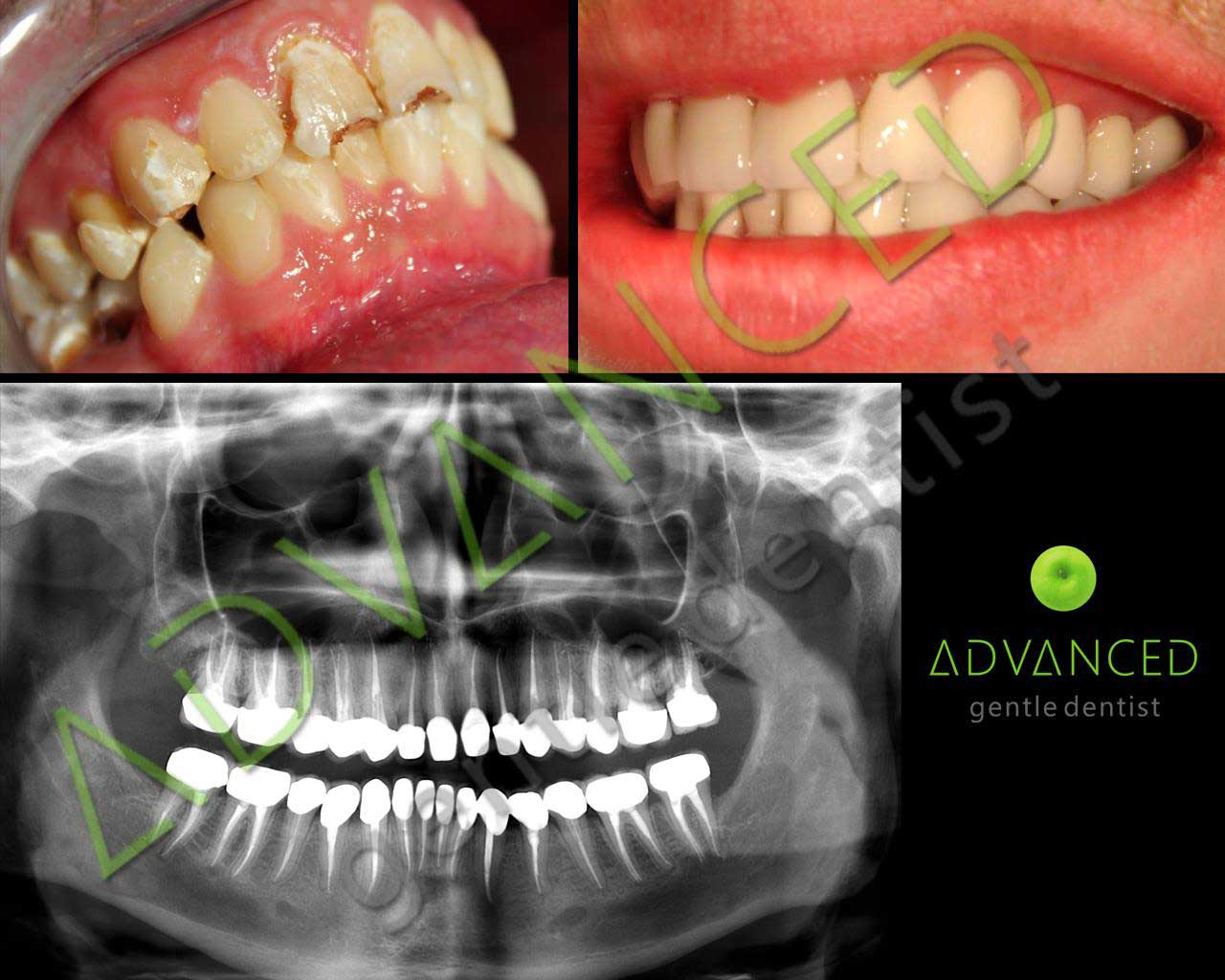 cazuri-advanced-gentle-dentist